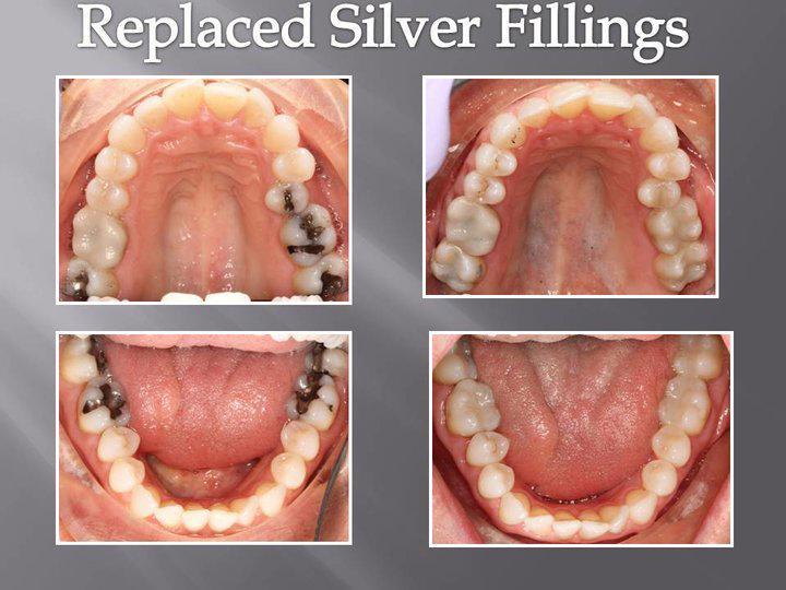 Dental Fillings Orlando FL