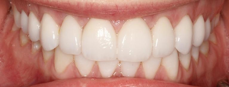Anna-Veneers-and-Cosmetic-bonding-After-Image