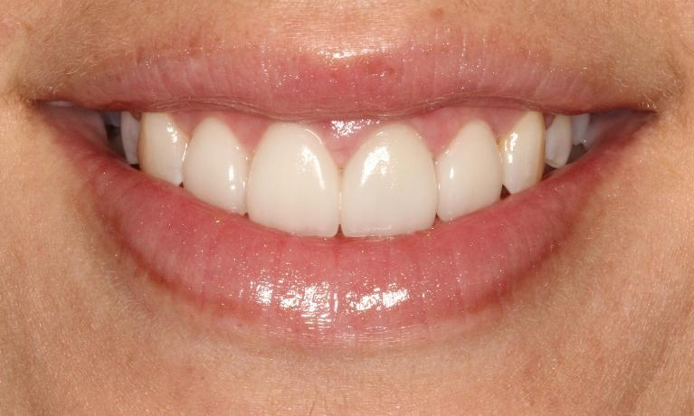 Candice-Veneers-and-Porcelain-Crown-After-Image
