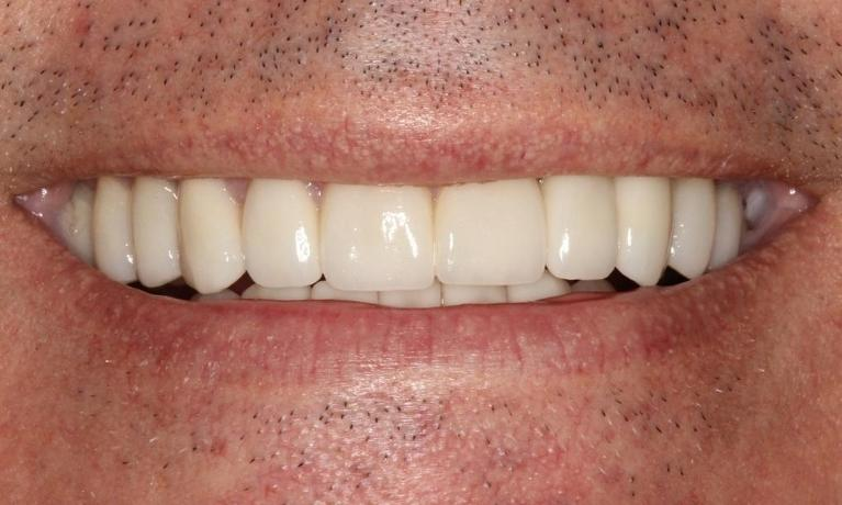 Chris-Full-Mouth-Rehabilitation-with-Porcelain-Crowns-Veneers-After-Image