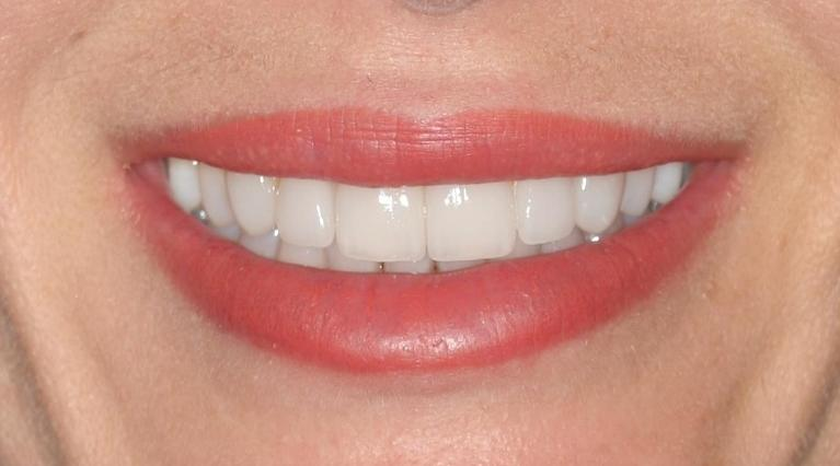 Christina-Inman-and-Porcelain-Veneers-After-Image