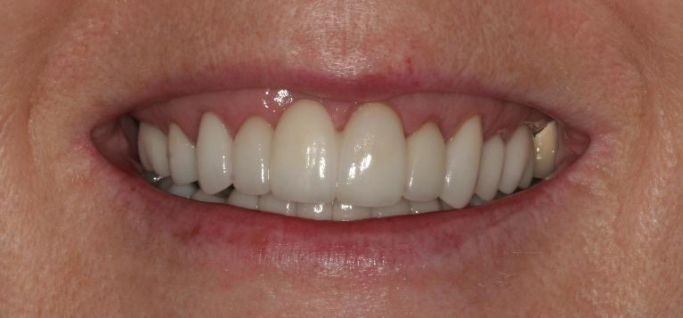 Christine-Veneers-and-Crowns-After-Image