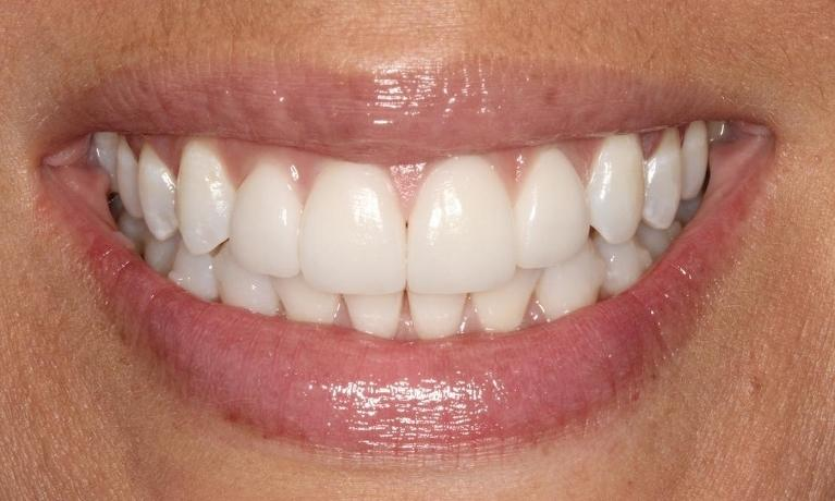 Denise-Invisalign-and-Porcelain-Veneers-After-Image