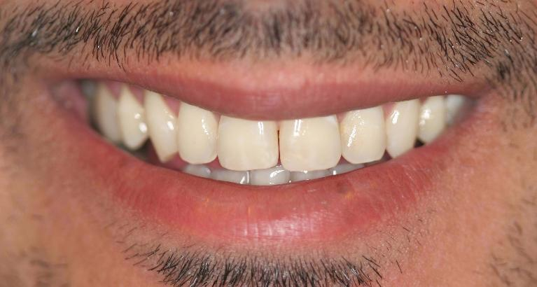 Fawaz-Zoom-Whitening-After-Image