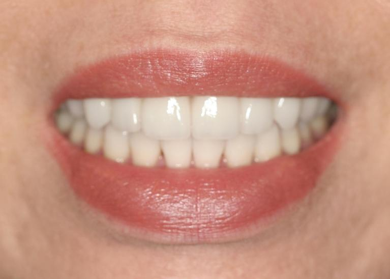 Hatsuyo-Porcelain-Crowns-and-Veneers-After-Image
