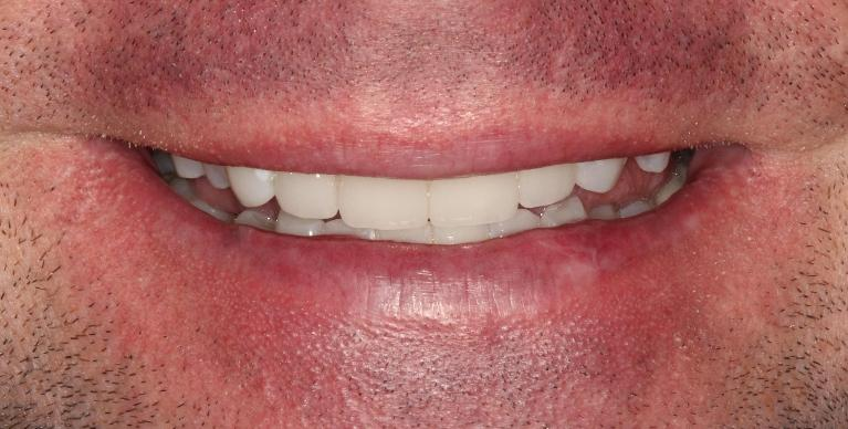 Jason-Porcelain-crown-and-veneers-After-Image