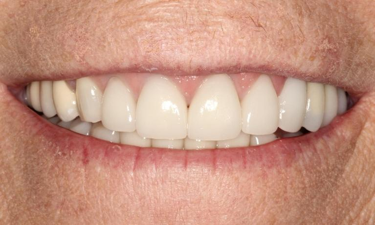 Jeanne-Crowns-and-Veneers-After-Image
