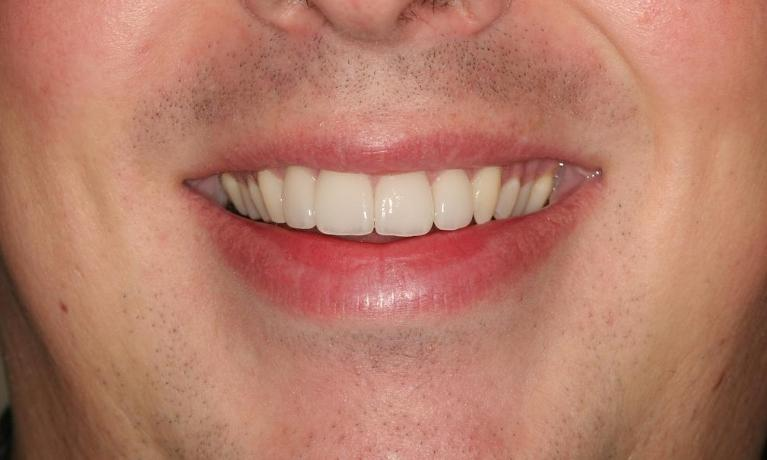 Jermey-6-Month-Smiles-Cosmetics-After-Image