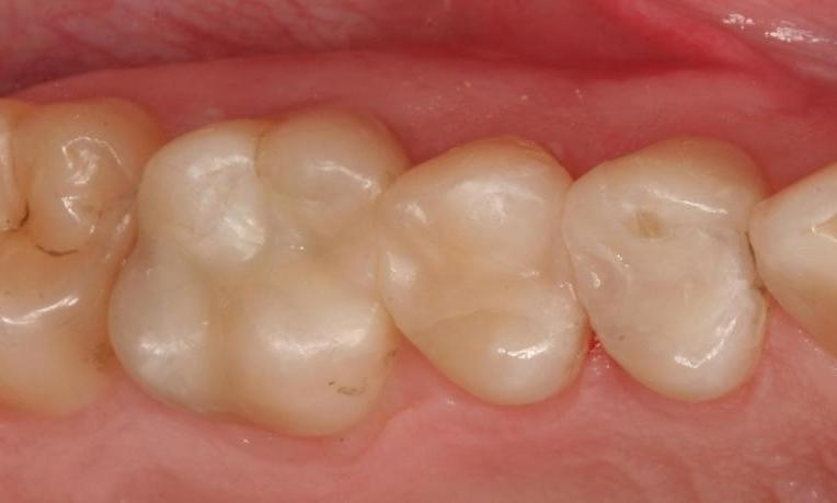 Fillings-Onlay-After-Image