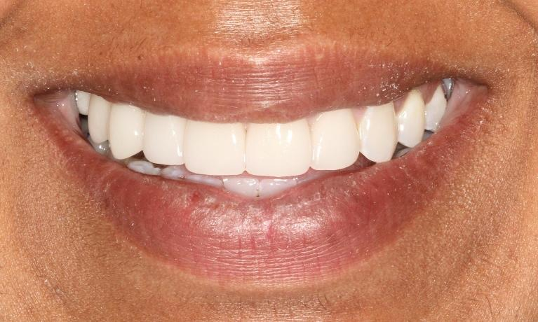 Kimberly-Veneers-After-Image