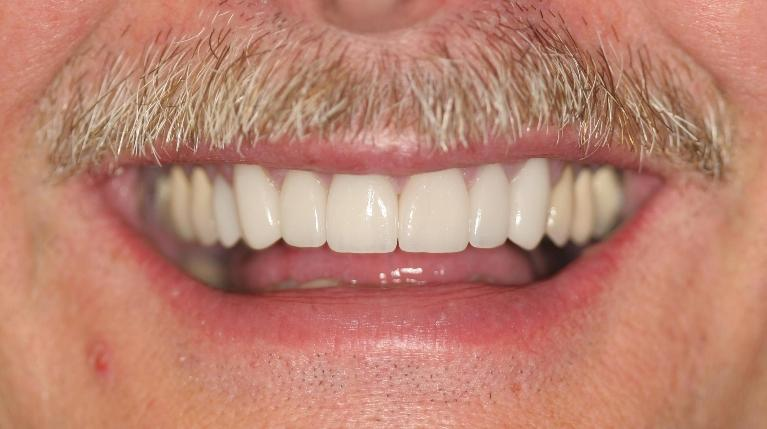 Mike-Veneers-and-Crowns-After-Image