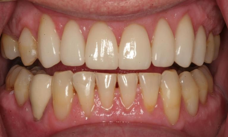 Porcelain-Crowns-and-Composite-Resin-Fillings-After-Image