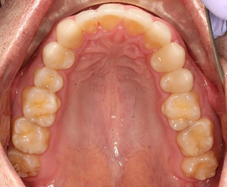 Rodney-6-Month-Smiles-and-Porcelain-Veneers-After-Image