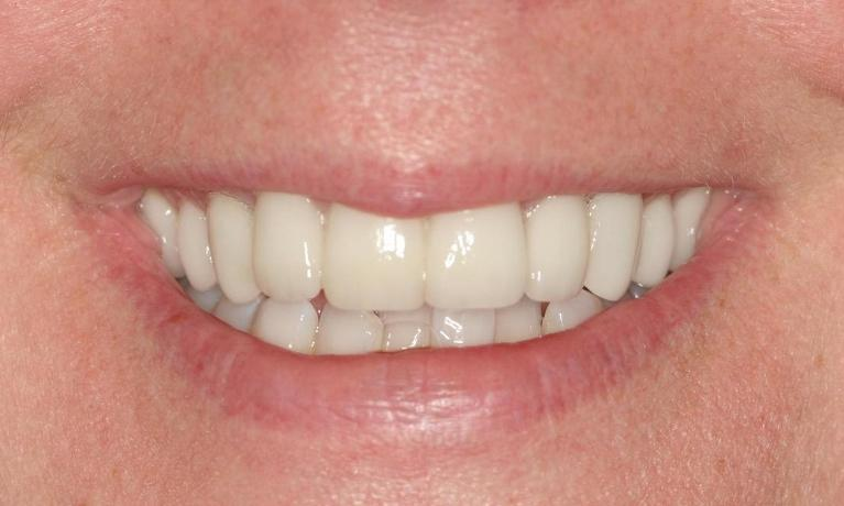 Shannon-Whitening-Crowns-Veneers-After-Image