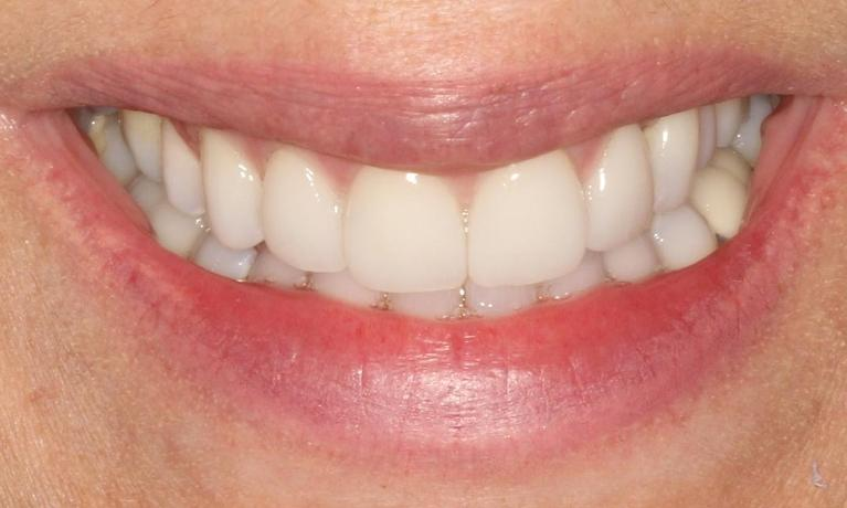 Teresa-6-month-smiles-and-Veneers-After-Image