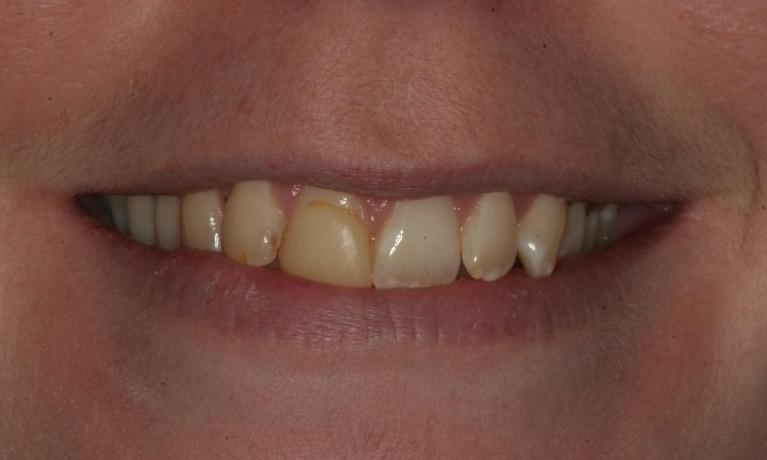 Amy-6-Month-Smiles-and-Porcelain-Veneers-Before-Image