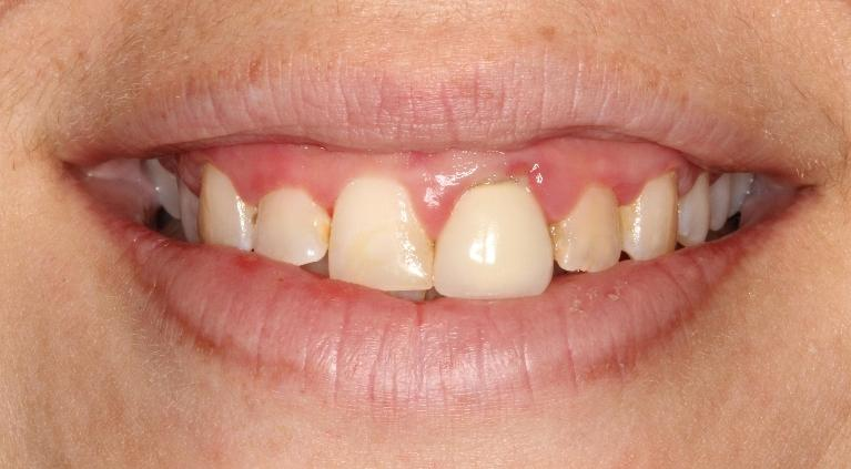Candice-Veneers-and-Porcelain-Crown-Before-Image