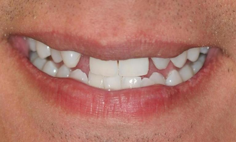 Chris-6-Month-Smiles-and-Porcelain-Veneers-Before-Image