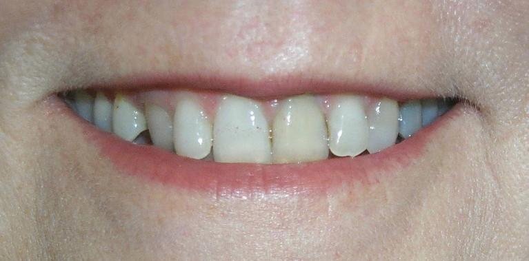 Christine-Poreclain-Veneers-and-Crowns-Before-Image