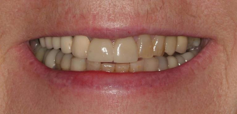 Crystal-Porcelain-Crowns-and-Bridge-Before-Image