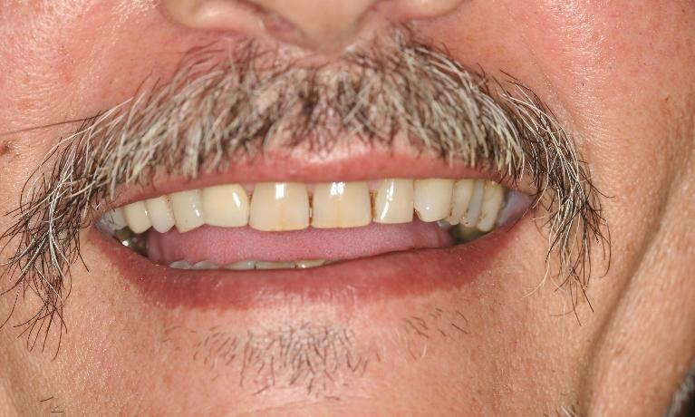 Don-Porcelain-Crowns-and-Veneers-Before-Image