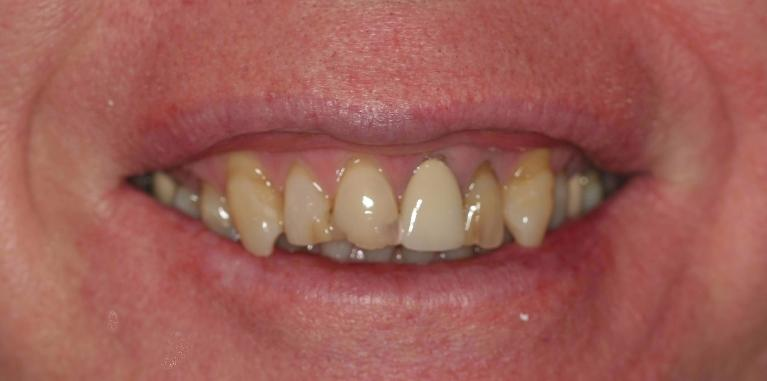 Don-Porcelain-Crowns-Before-Image