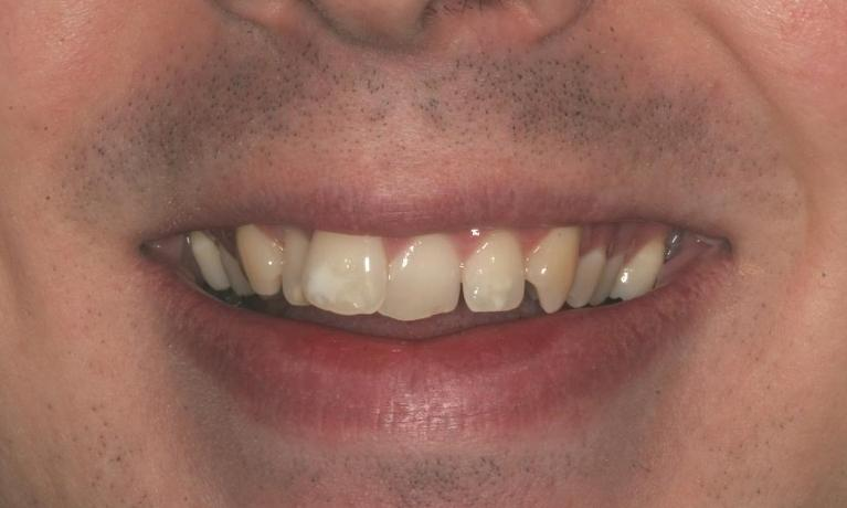 Jermey-6-Month-Smiles-Cosmetics-Before-Image