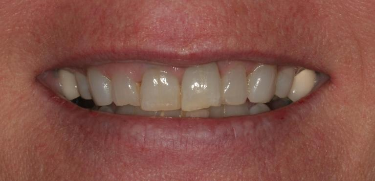 Susan-6-Month-Smiles-and-Porcelain-Crowns-and-Veneers-Before-Image