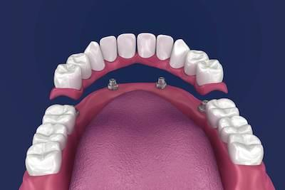 Up closer model of partial denture l Alafaya Center For Cosmetic & Family Dentistry