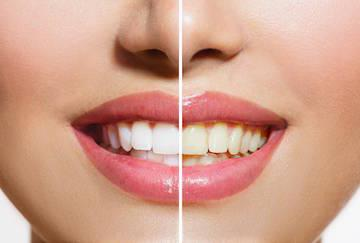 Straight Bright Smile I Cosmetic Dentistry