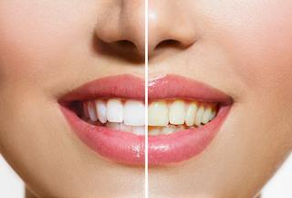 A before and after image of teeth whitening | Teeth Whitening in Orlando