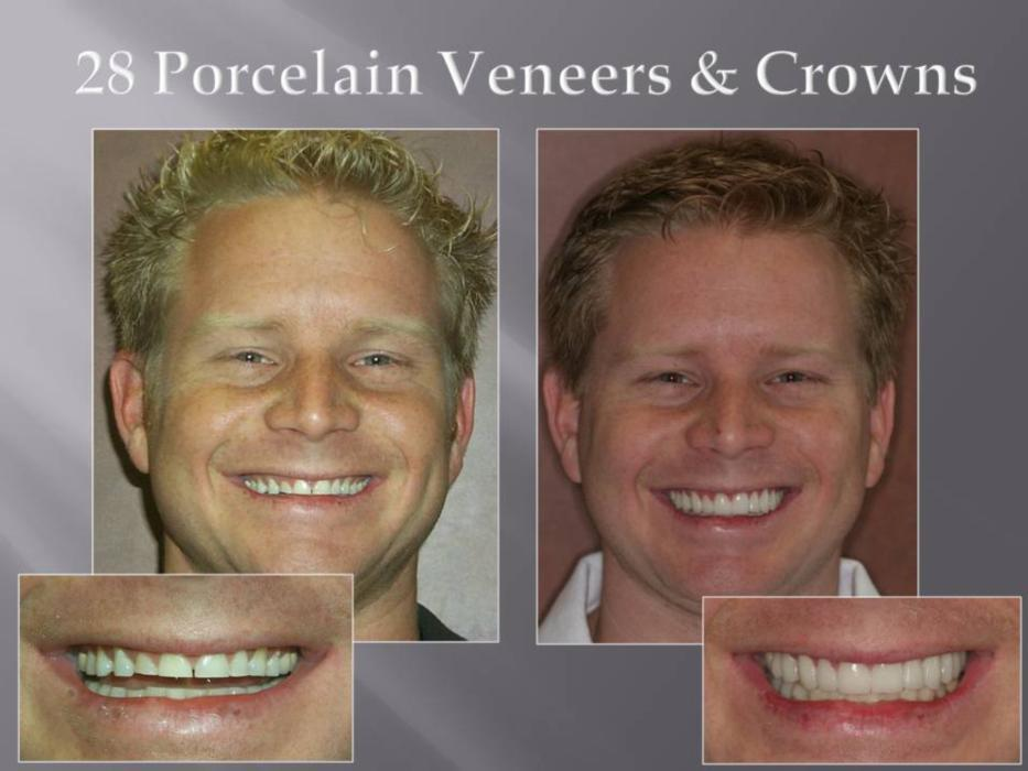 close up of patients straight teeth I cosmetic dentist in orlando, fl