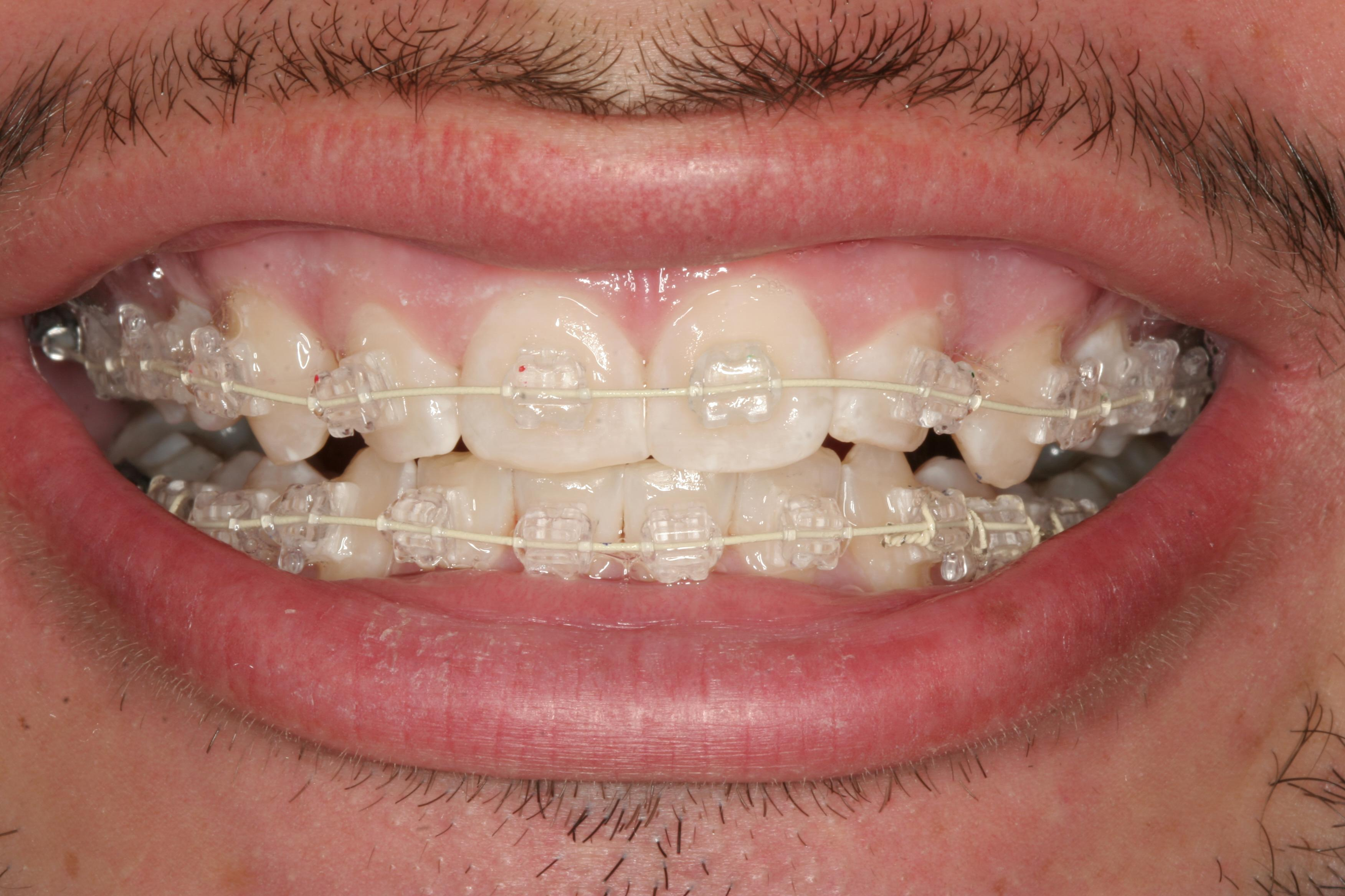 a close up of a patient with six month smiles | Orthodntics in Orlando FL