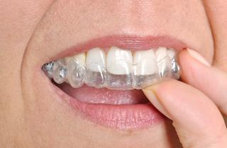 A woman takes out her aligner | orlando orthodontics