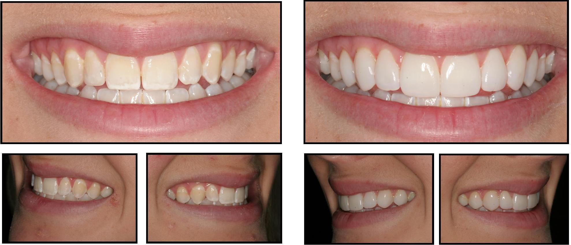 Veneer before and after photos in Orlando FL
