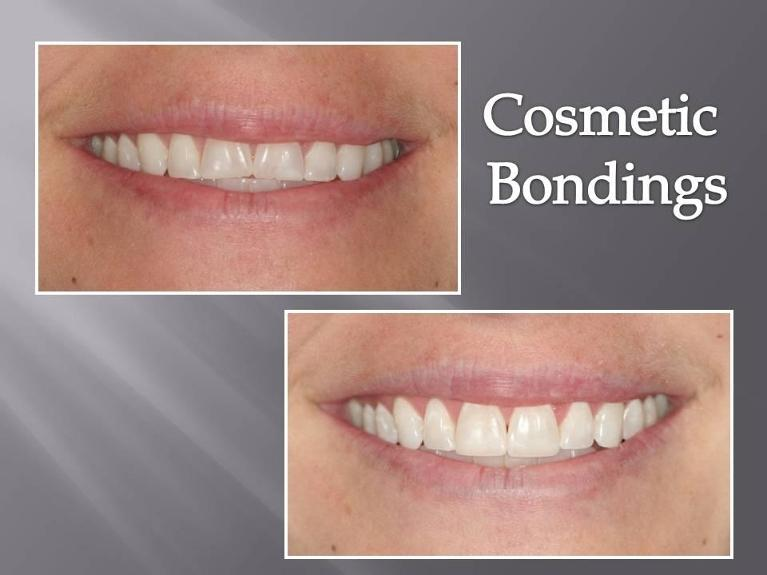 Before and After | Cosmetic Bonding in Orlando