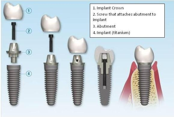 implants, dental implants, replacing teeth, replacing a tooth