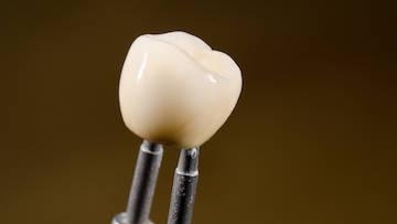Close up of dental crown l Cosmetic dentist in Orlando