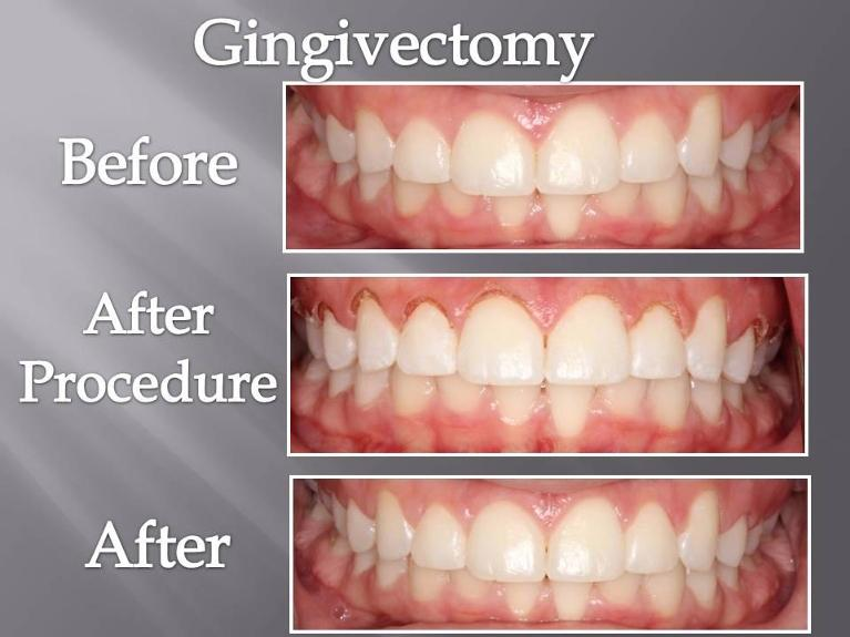 Gingivectomy Before and After | top dentist orlando florida