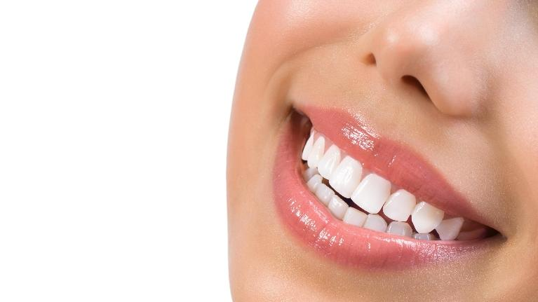 Woman Smiling | Teeth Whitening in Orlando