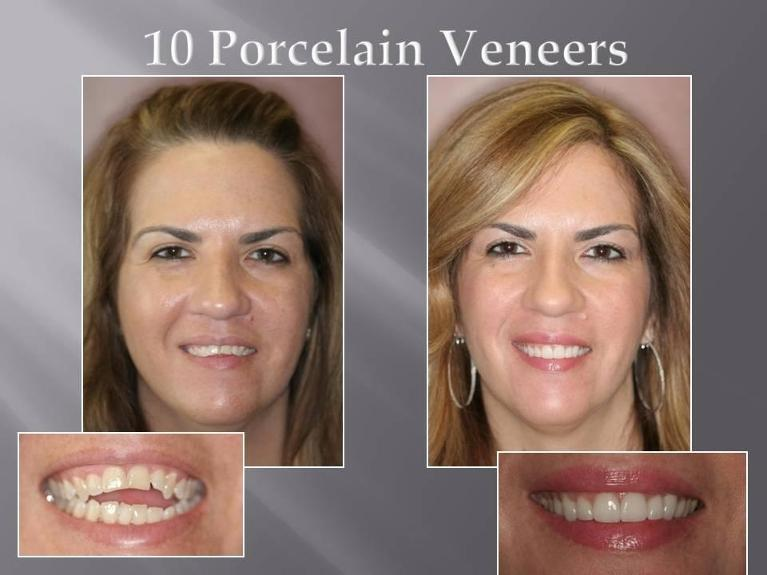 Top Dentist in Orlando | Before and After Veneers