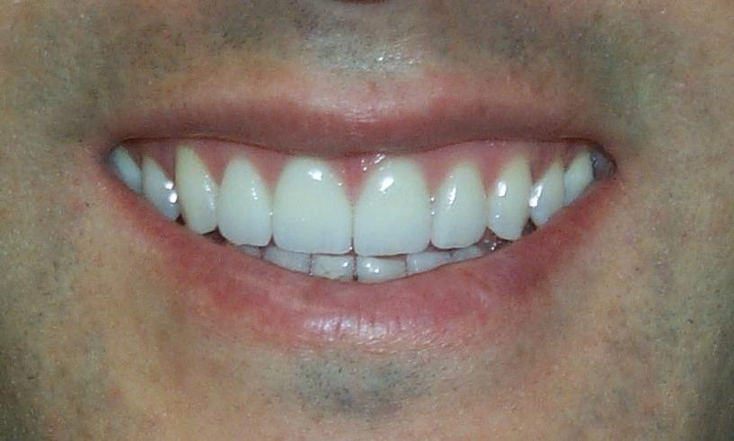 Patient with new veneers and whitening in Orlando FL