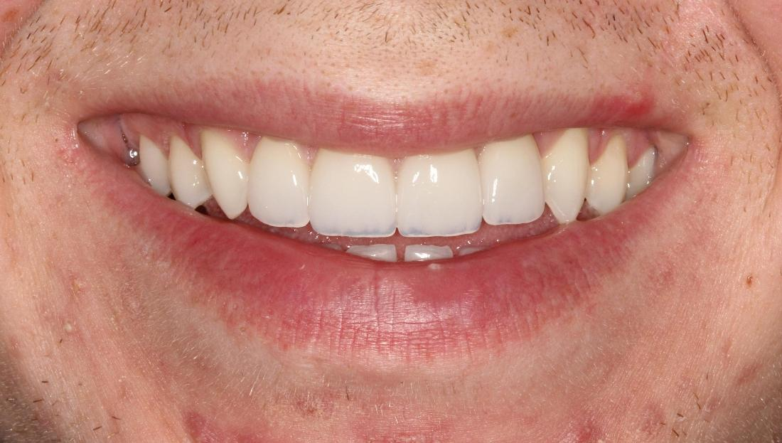 Bright smile after Cosmetic Dentistry l Alafaya Center For Cosmetic & Family Dentistry Orlando FL