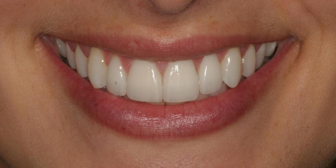 White teeth after porcelain veneers l Porcelain Veneers Orlando FL