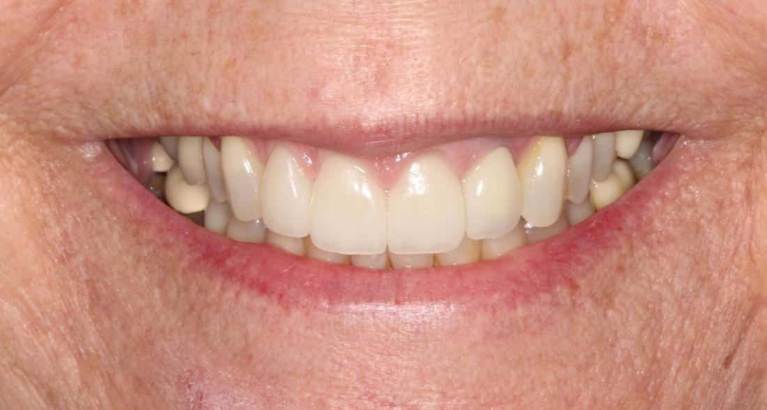 Complete smile after Zoom Teeth Whitening l Teeth Whitening Orlando FL