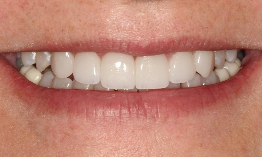 White Smile After Veneers l Alafaya Center for Cosmetic & Family Dentistry