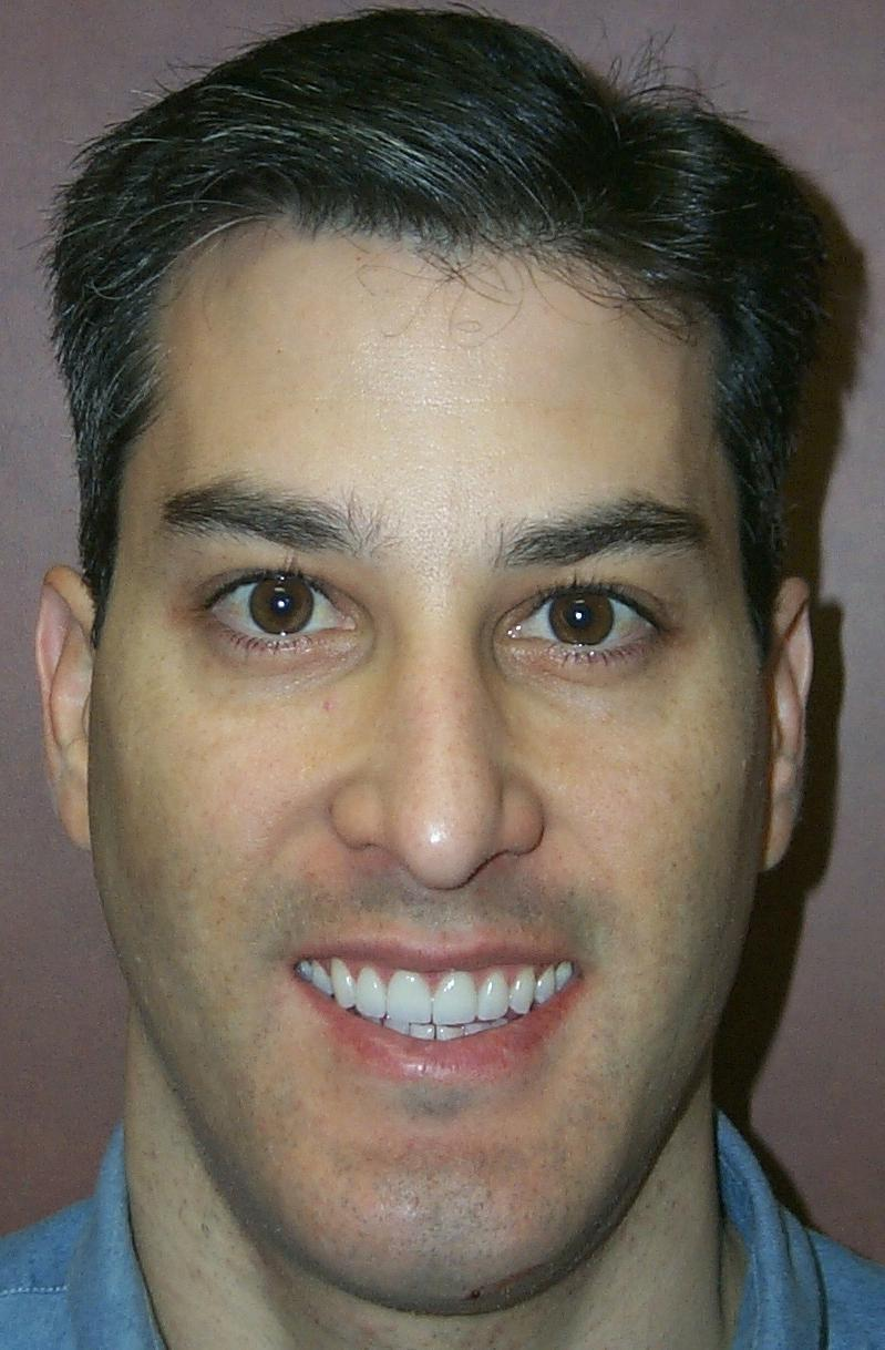 Patient with his new veneers and whitening in Orlando FL