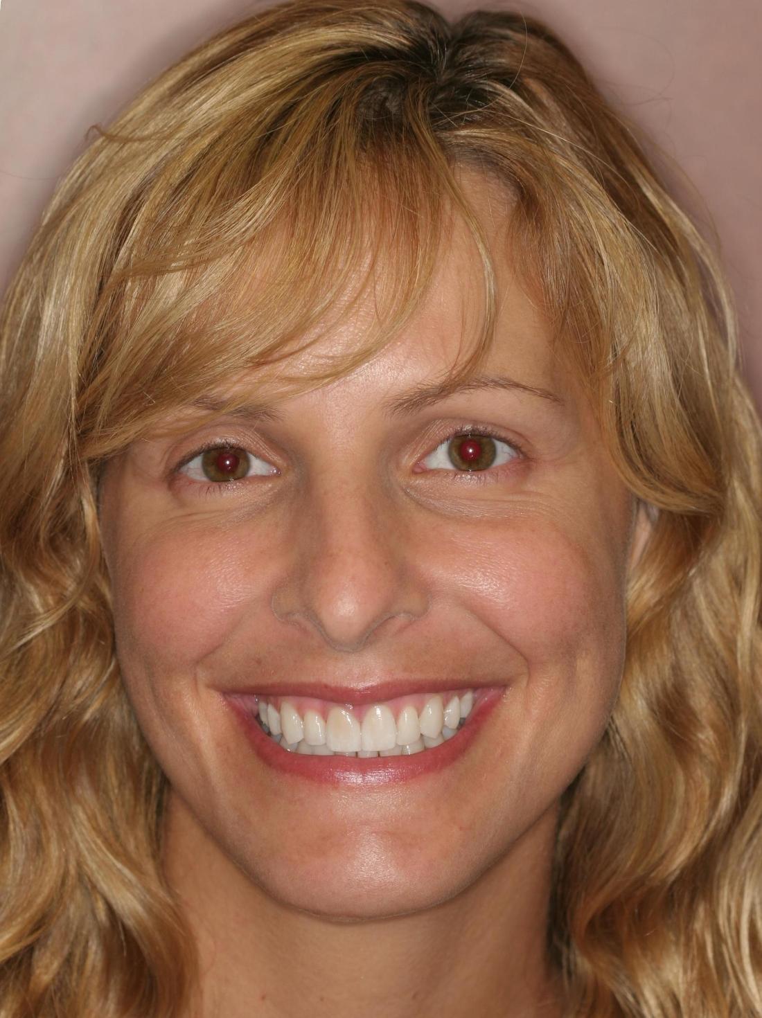 Better Looking Smiles In Alafaya Kathy Veneers