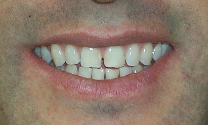 Patient before whitening and veneers in Orlando