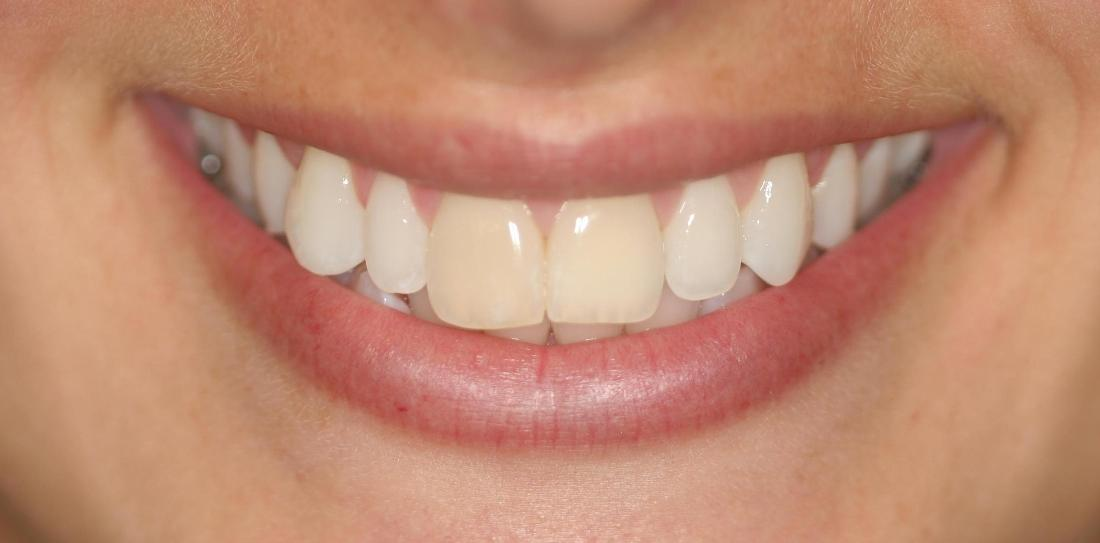 Discolored teeth before veneers l Alafaya Center For Cosmetic & Family Dentistry